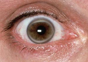 white-rings-around-corneas-eyes-dm