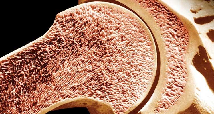Síntomas del cáncer de hueso